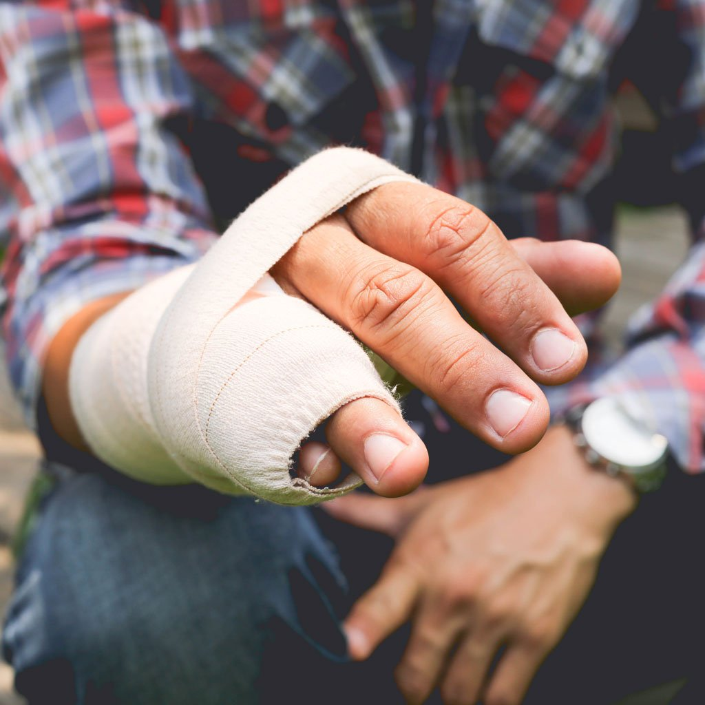 A man holding out his broken hand, wrapped in bandages.